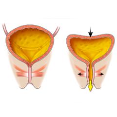 Vescica: modulo anatomia e fisiologia