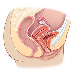 Bacino femminile: modulo anatomia e fisiologia