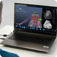 Ультразвуковой тренажер для селезенки: модуль анатомии и физиологии