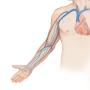 Ultrasuoni venosi del braccio