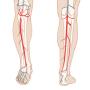 Beinarterieller Ultraschallkurs