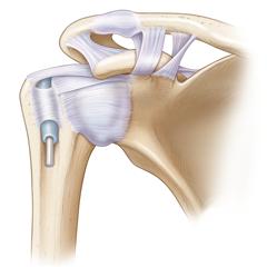 Spalla: modulo Anatomia e Fisiologia