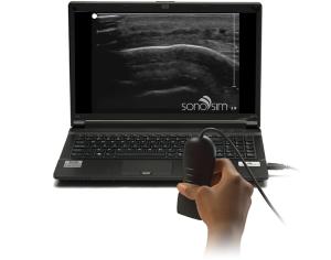 SonoSim Ultrasound Challenge: Soft Soft