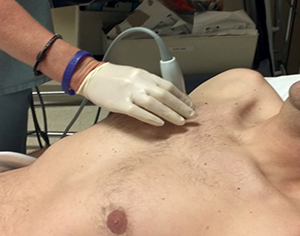 Anatomical distribution of traumatic pneumothoraces on chest computed tomography: implications for ultrasound screening in the ED