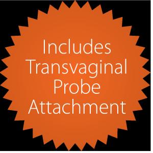Transvaginale Sondenbefestigung