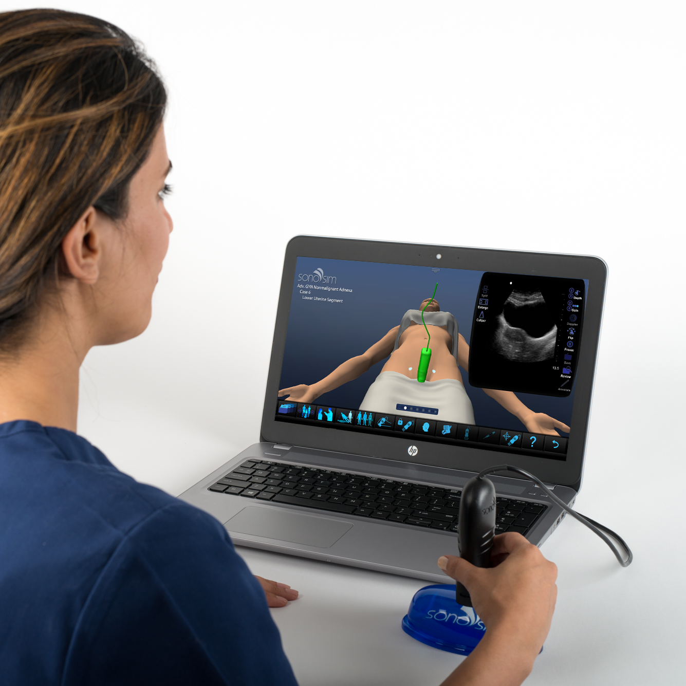 Ultrasound Simulator for GYN Ultrasound Nonmalignant Adnexal Conditions: Advanced Clinical Module