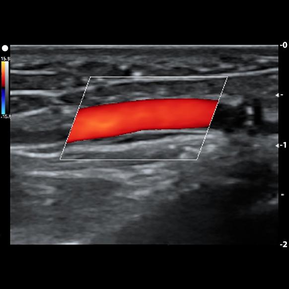 رسم خرائط الأوعية الدموية للتخطيط قبل الجراحة للوصول إلى غسيل الكلى: الوحدة السريرية المتقدمة