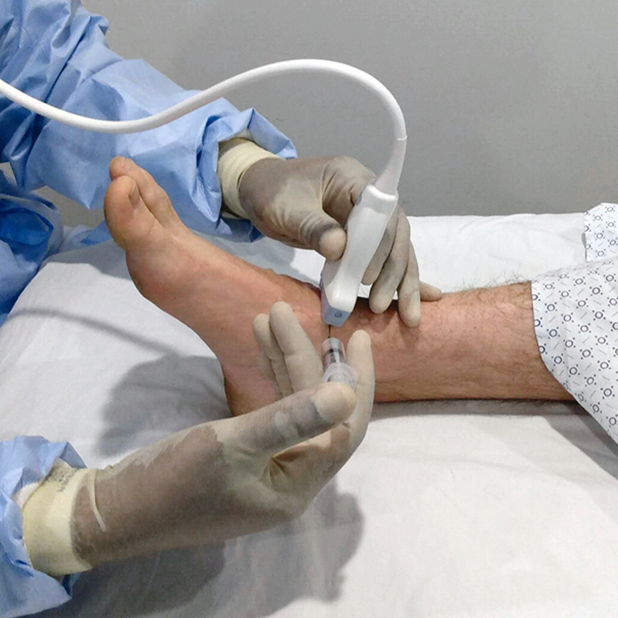 Iniezione e aspirazione dell'articolazione tibiotalare: modulo procedurale