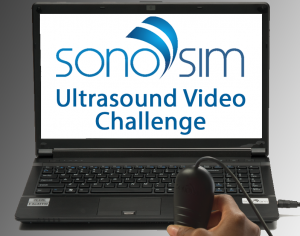 SonoSim Ultrasound Challenge: Airway