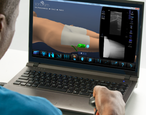 SonoSim Releases Comprehensive Musculoskeletal Ultrasound Training Package