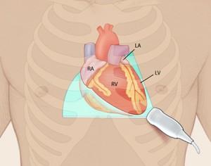 Allenamento ecografico cardiaco mirato: quanto è sufficiente?