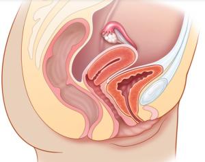 Un nuovo uso di ultrasuoni per insegnare l'abilità di esame fisico e anatomia pelvica del sistema riproduttivo
