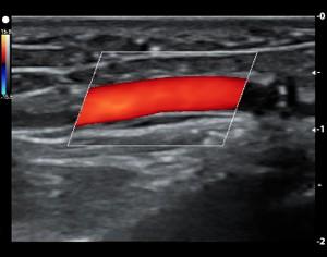 Predialysis Vascular Mapping